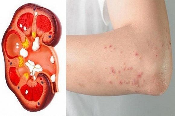 da khô ngứa là dâu hiệu của bệnh thận