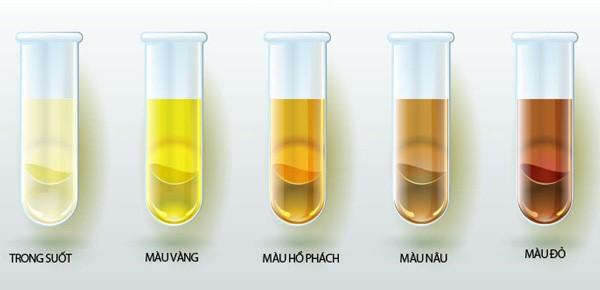 màu sắc nước tiểu biểu hiện bệnh thận