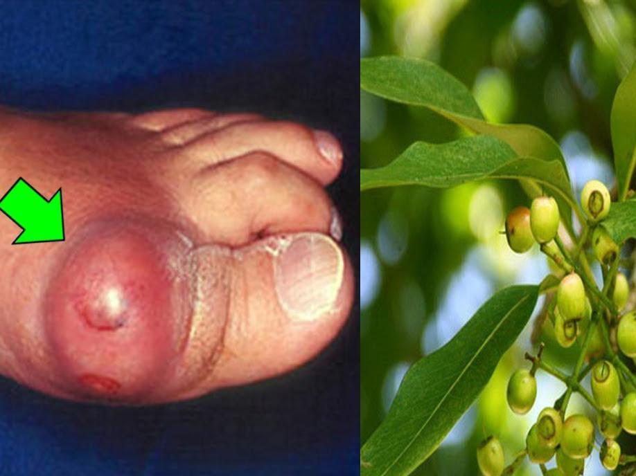 Lá vối chữa bệnh gout