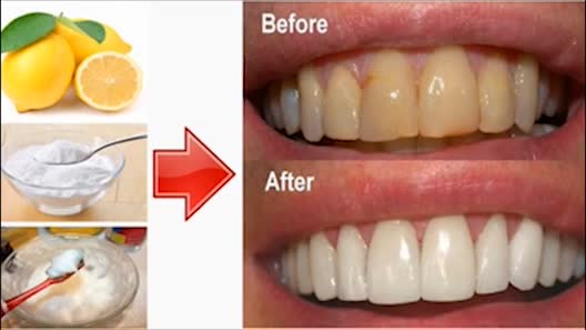 basking soda giúp trắng răng