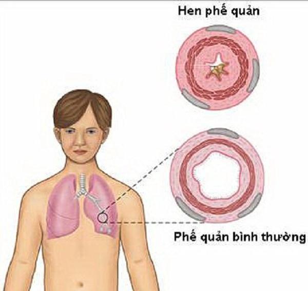 công dụng của bạch giới tử chữa hen suyễn