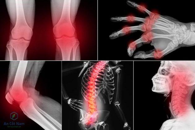 hình ảnh đau nhức xương khớp ở người bệnh
