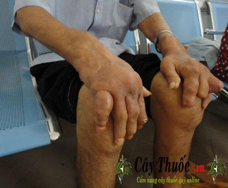 lá sa kê điều trị gút hiệu quả