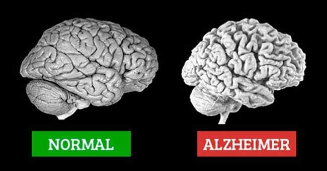 cây thông đất chữa teo não