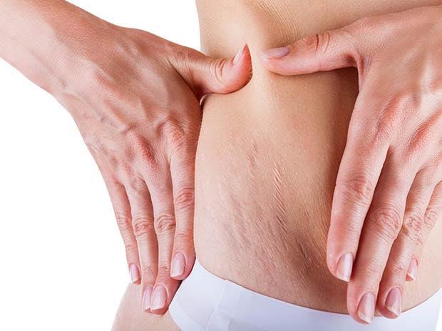 vỏ măng cụt trị rạn da sau sinh