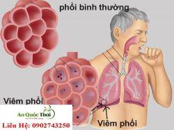 Bệnh phổi có nguy hiểm không? Triệu chứng và cách điều trị bệnh phổi